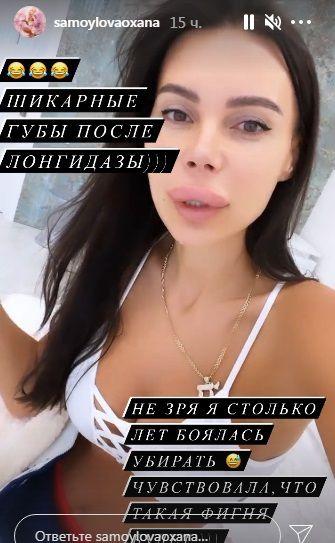 Губа Оксаны Самойловой жутко вздулась после инъекции